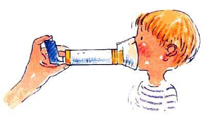 Nursing essay on asthma